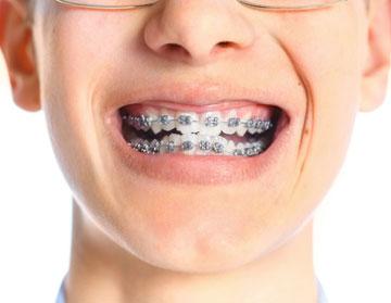 ortodoncia-dentista-carlos-ganzo-burgos